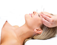Acupuncture Dorking 3